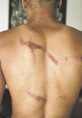 image of scars on Octavius Bonds